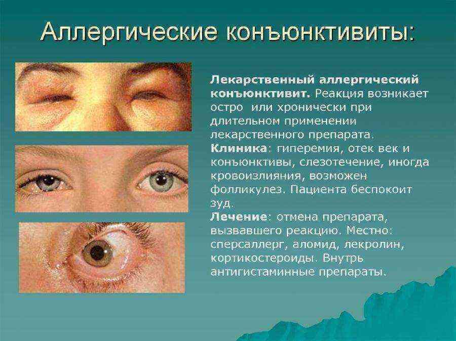 Аденовирусный конъюнктивит: причины, симптомы, лечение - энциклопедия ochkov.net