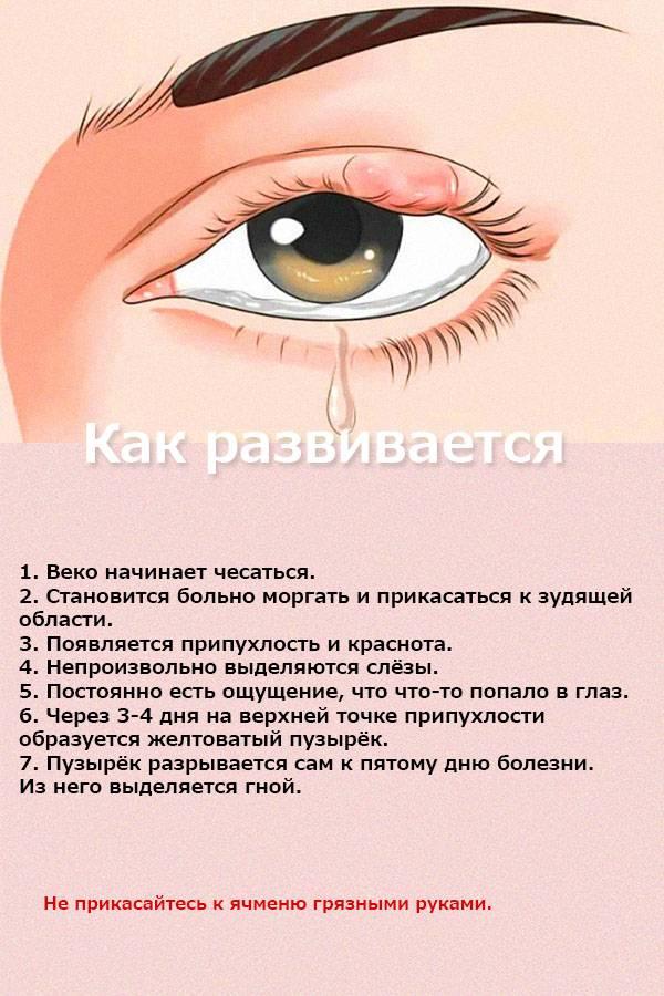 Как убрать синяки под глазами? причины появления