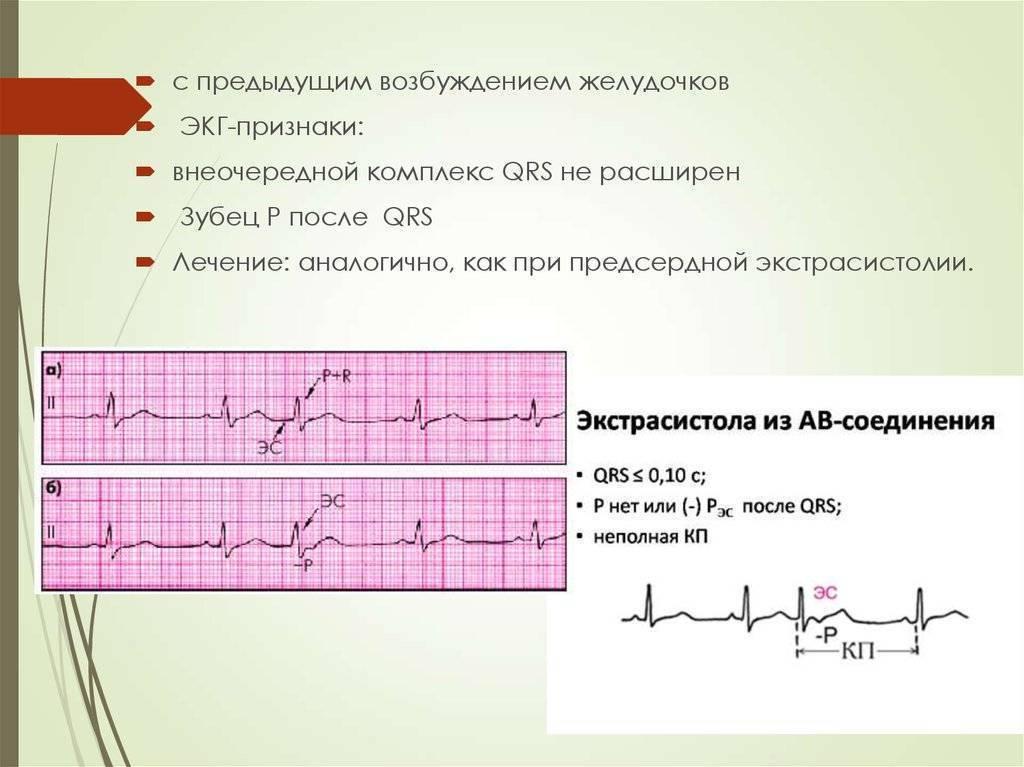 Нюансы детской кардиологии