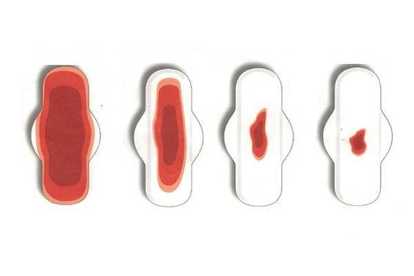 Обильные месячные (меноррагия): причины и лечение - напоправку – напоправку