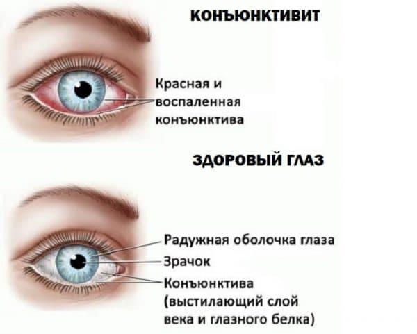Темные круги под глазами, причины и коррекция: как избавиться