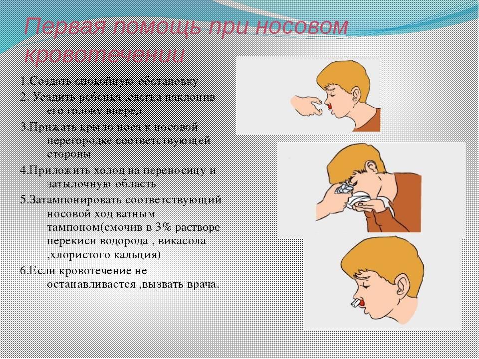 Носовое кровотечение: почему оно возникает и как устранить причины?