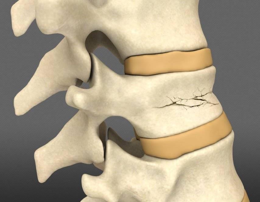 Лечение компрессионных переломов позвоночника у детей и пожилых | нсклиник
