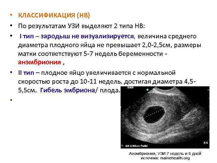 Генетическое исследование клеток ворсин хориона неразвивающейся беременности