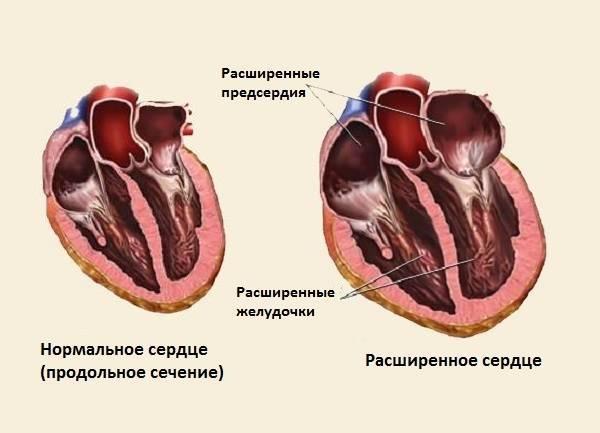 Вторичная кардиомиопатия у детей   лечение сердца