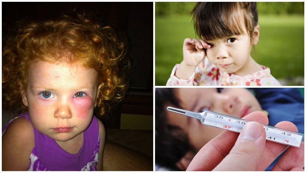 После укуса комара опухла рука у ребенка или взрослого, первая помощь