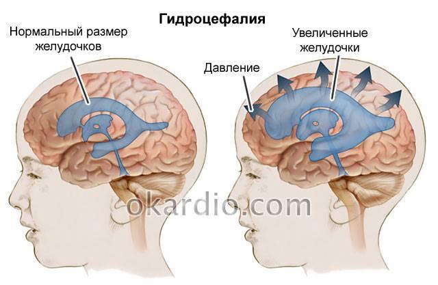 Ишемия головного мозга: диагностика, лечение и профилактика