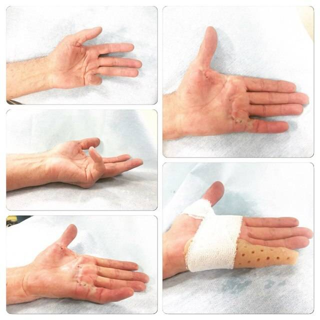 Щелкающий палец (болезнь нотта)