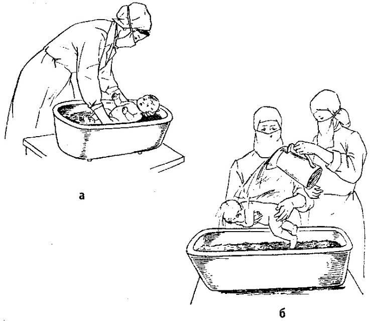 Как купать новорожденного ребенка - 69 фото водных процедур