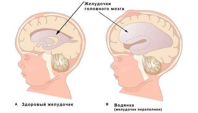 Гидроцефалия - нейрохирургическая операция в москве