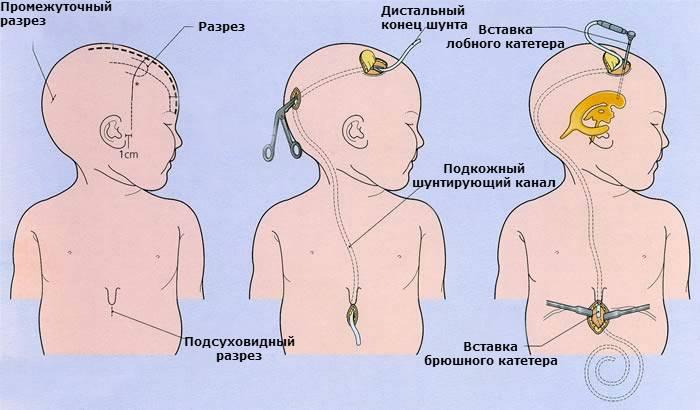 Причины, измерение и лечение внутричерепного давления