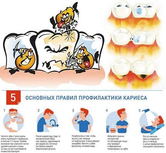 Кариес молочных зубов: о чем важно помнить родителям