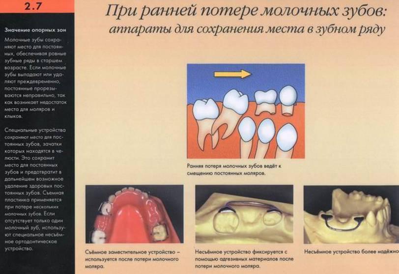 Крошатся зубы у ребенка: в чем причина, как лечить, как предотвратить разрушение