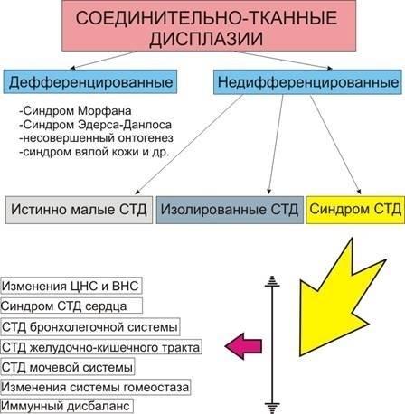 Недифференцированные дисплазии соединительной ткани (проект клинических рекомендаций)