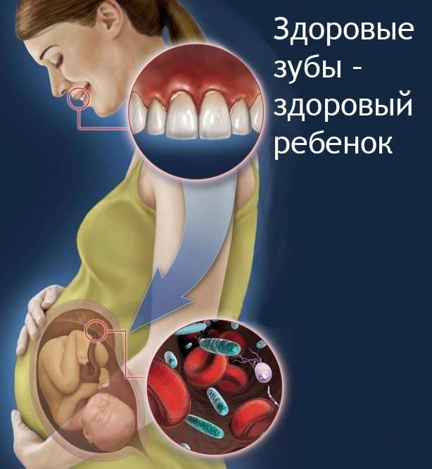 Кариес при беременности и кормлении грудью