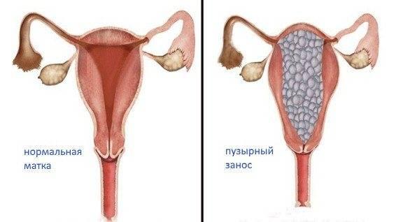 Нормы хгч по неделям беременности - частный роддом клиники екатерининская
