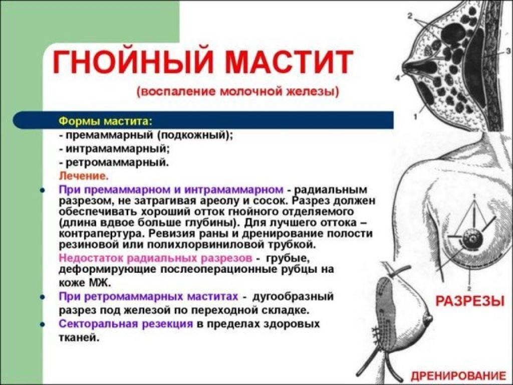 Мастит: диагностика и лечение