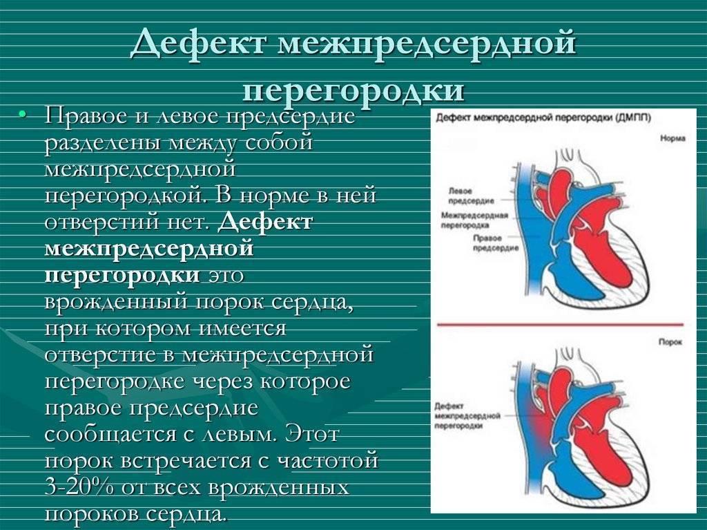 Дефект межпредсердной перегородки                (дмпп, недостаточность предсердной перегородки)