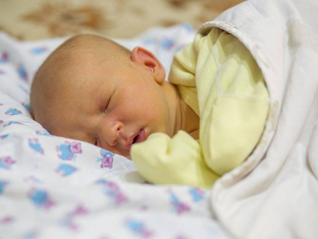 Появление желтухи у новорожденного ребенка
