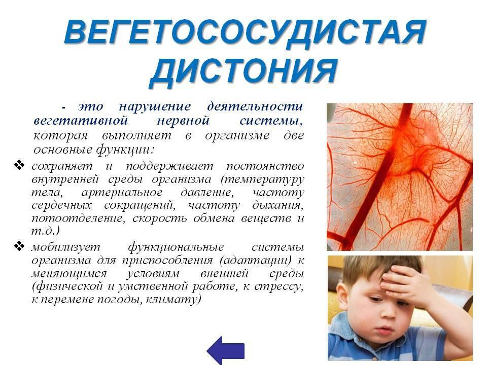 Вегето-сосудистая дистония (всд)