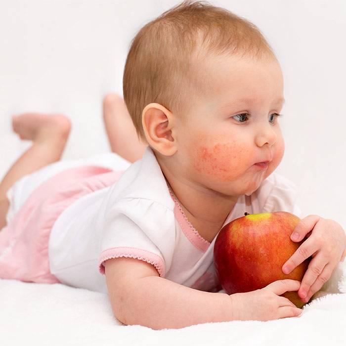 Пищевая аллергия — большая медицинская энциклопедия