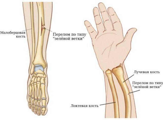 Перелом предплечья. причины перелома, перелом со смещением, перелом лучевой кости, перелом локтевой кости :: polismed.com