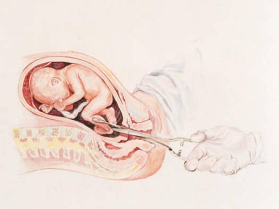 Начало «золотого» периода: акушер-гинеколог рассказала о 12 неделе беременности