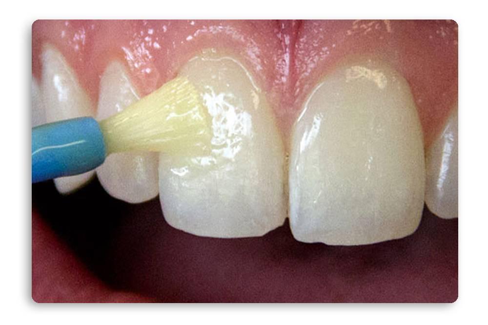 Покрытие зубов фторлаком - что это такое, цена, отзывы, фото до и после | merilin-clinic.ru