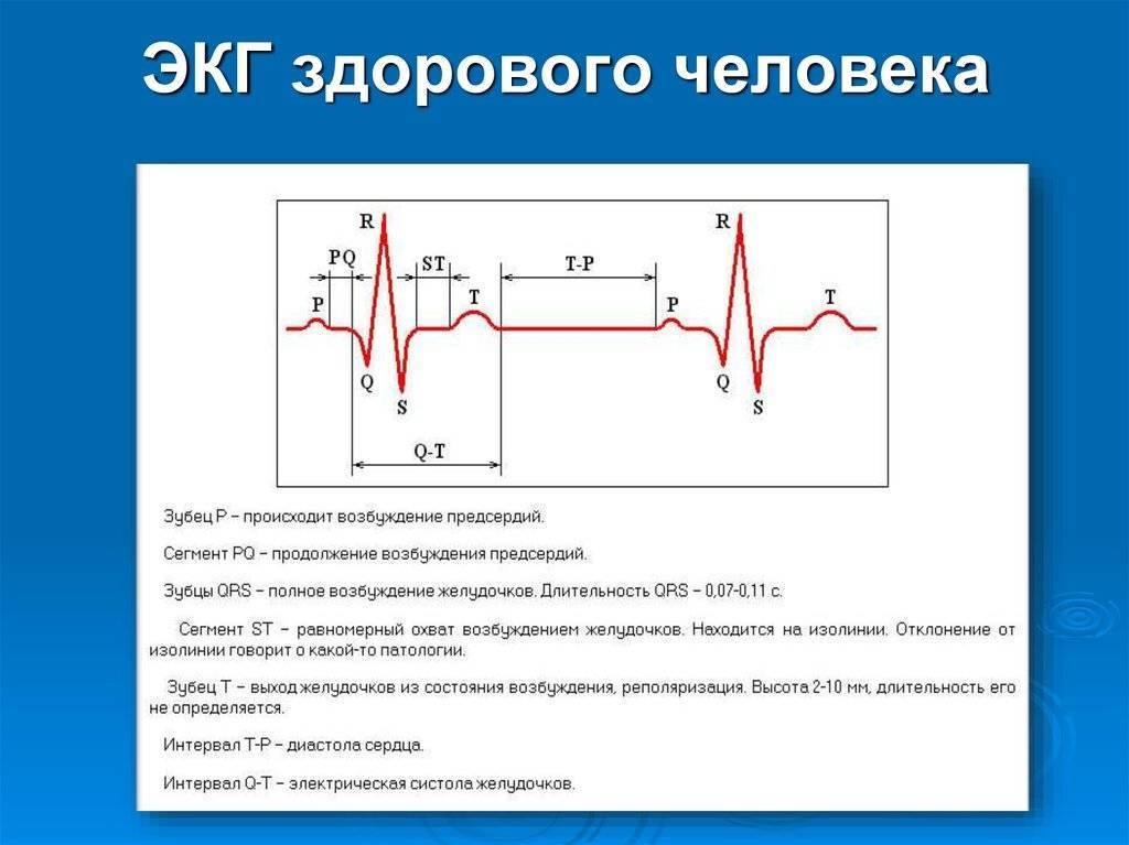Экг при остром инфаркте миокарда - сибирский медицинский портал