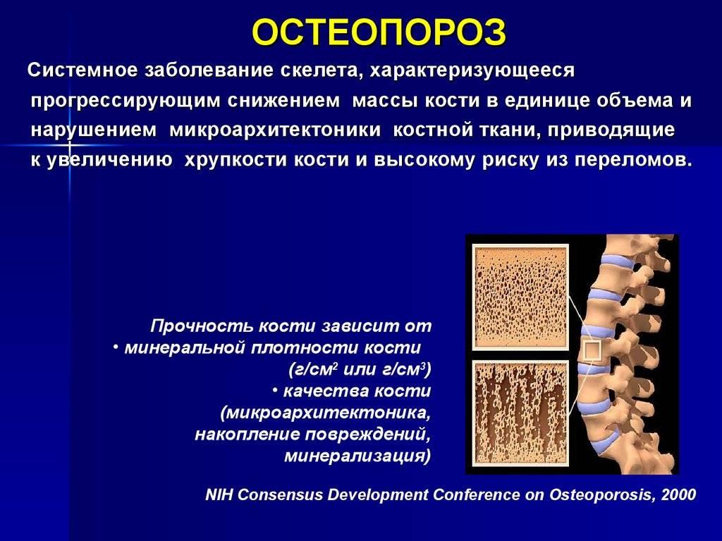 Остеопороз у детей: причины, симптомы и лечение