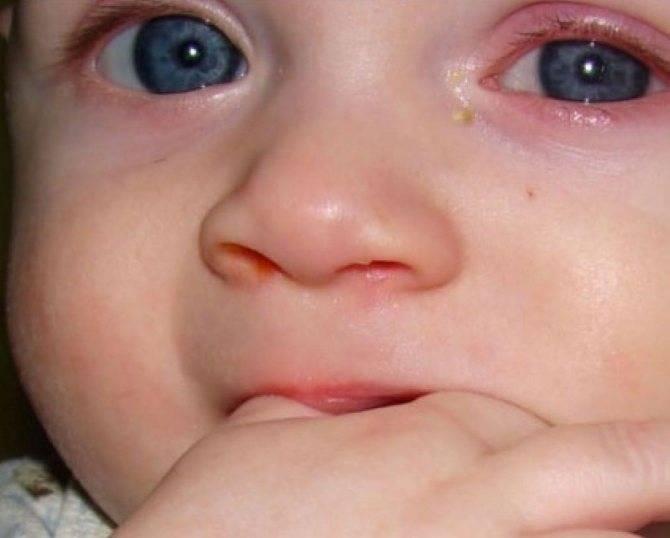 Давящая боль в глазах: причины, диагностика и лечение