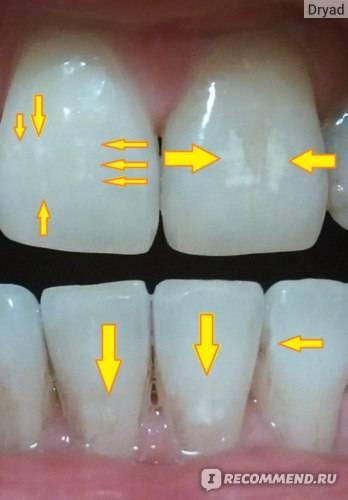 Фторирование зубов у детей и взрослых: цена, отзывы о colgate duraphat