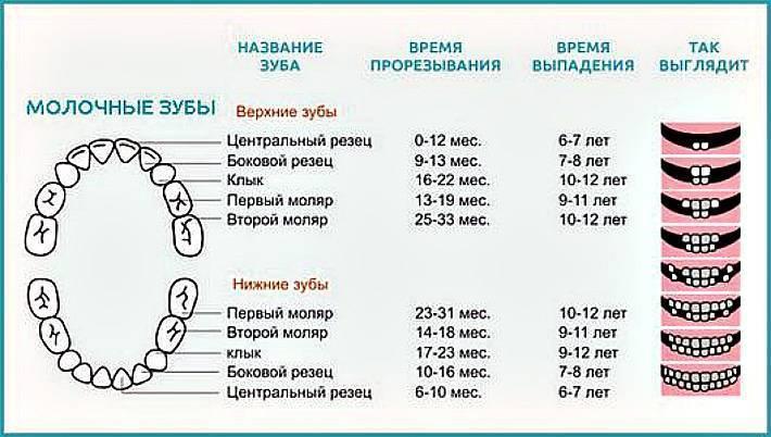 Бутылочный кариес у детей – фото, лечение молочных зубов до 3 лет и после
