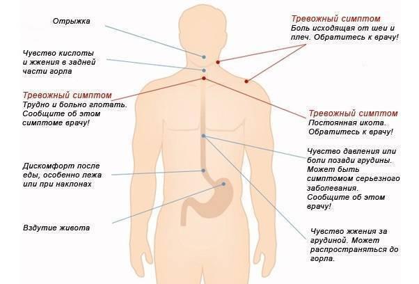 Изжога: причины. что делать при изжоге и как от неё избавиться