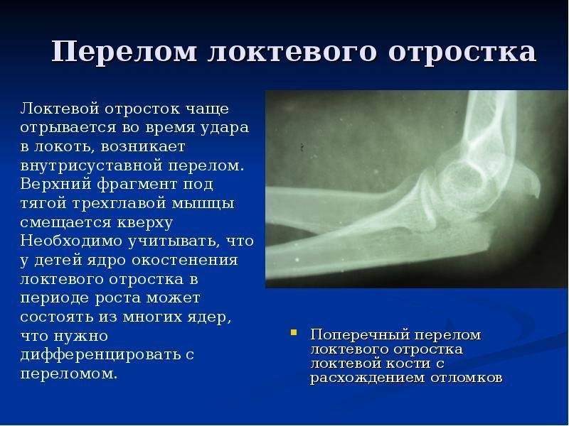 Переломы плечевой кости в месте образования локтевого сустава