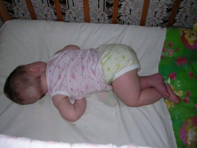 Почему малыш запрокидывает голову назад и выгибается в 9 месяцев: возможные причины и стоит ли беспокоиться