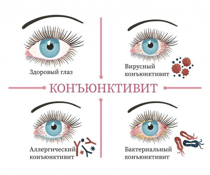 Конъюнктивит - причины, симптомы, лечение конъюнктивита. все глазные болезни - vseozrenii.