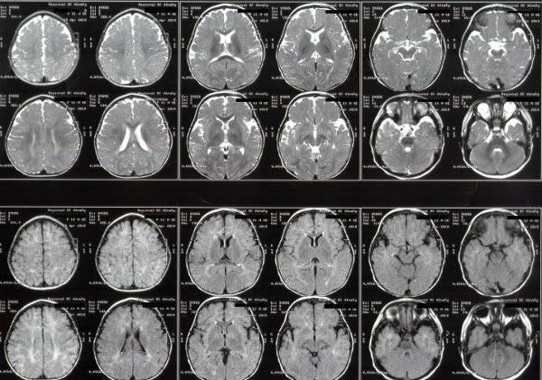Борозды и извилины головного мозга, больших полушарий