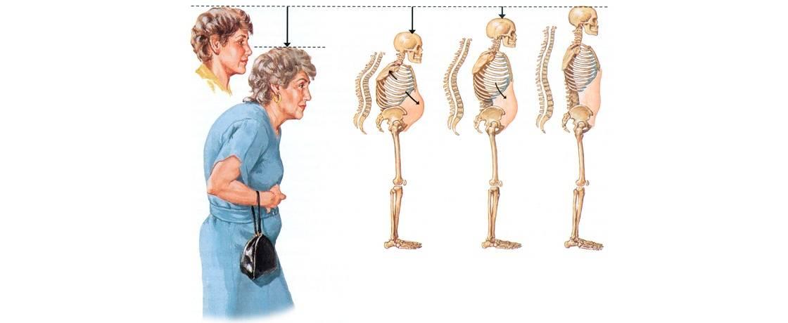 Мраморная болезнь - симптомы болезни, профилактика и лечение мраморной болезни, причины заболевания и его диагностика на eurolab