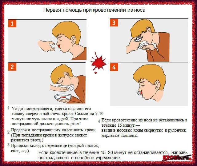 Как остановить носовое кровотечение у ребенка: в домашних условия