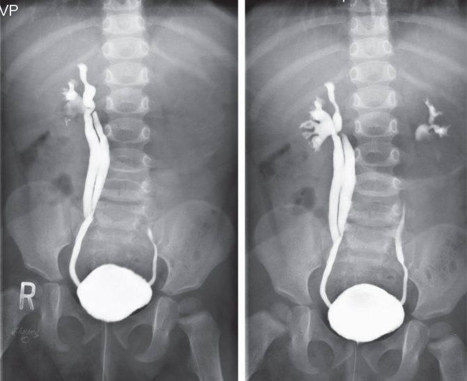 Чем заменить цистоскопию: узи, мрт, уретроскопия, цистография? | университетская клиника