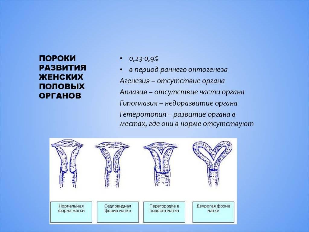 Седловидная матка: причины, симптомы, диагностика и лечение