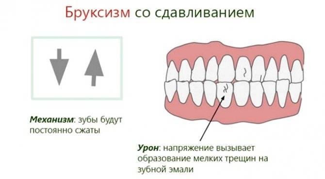 Почему ребенок скрипит зубами во сне. причины и лечение