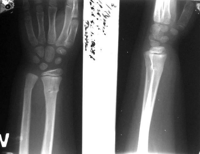 Перелом лучевой кости. причины, симптомы, виды, первая медицинская помощь и реабилитация