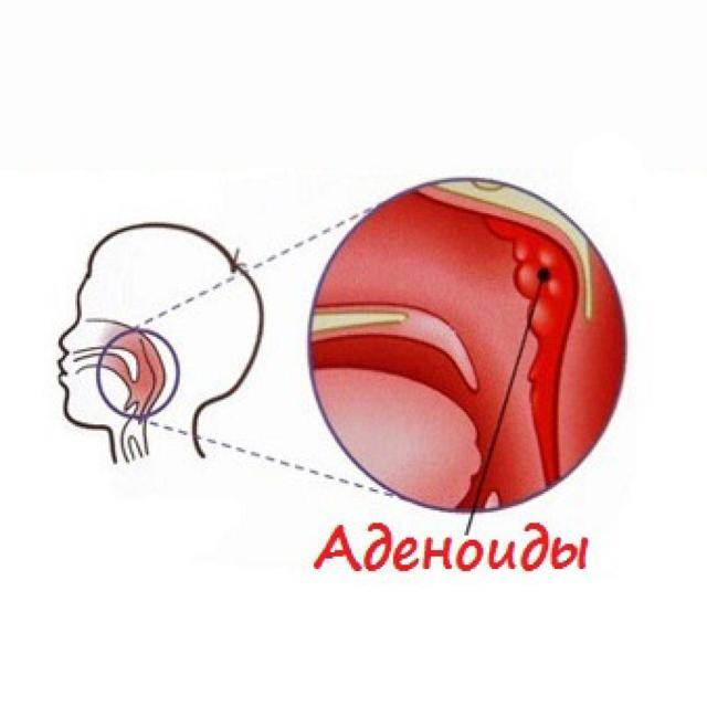 Аденоиды – симптомы и лечение. операция по удалению аденоидов.