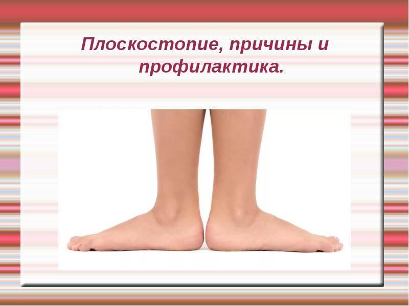 Лечение плоскостопия