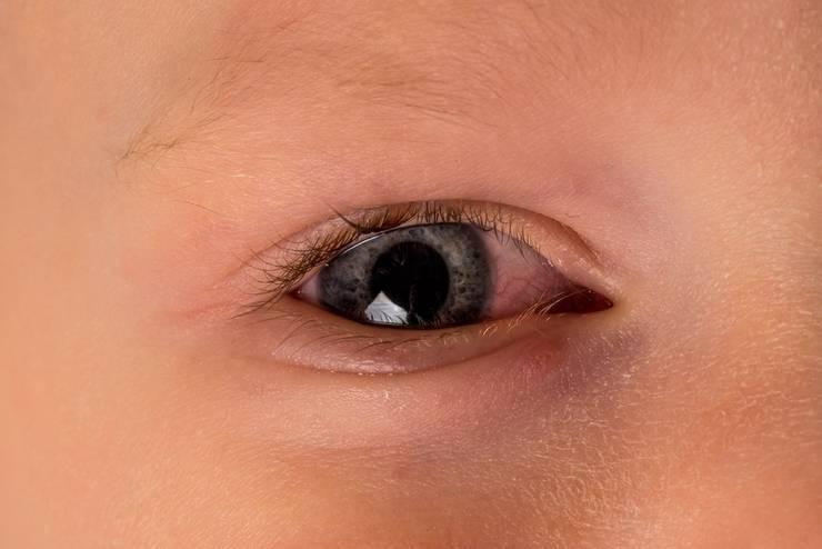 Выделения из глаз у кошки: как определить причину и чем лечить.