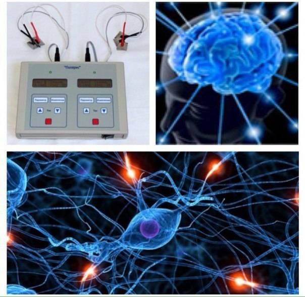 Микрополяризация мозга - эффективная методика лечения.