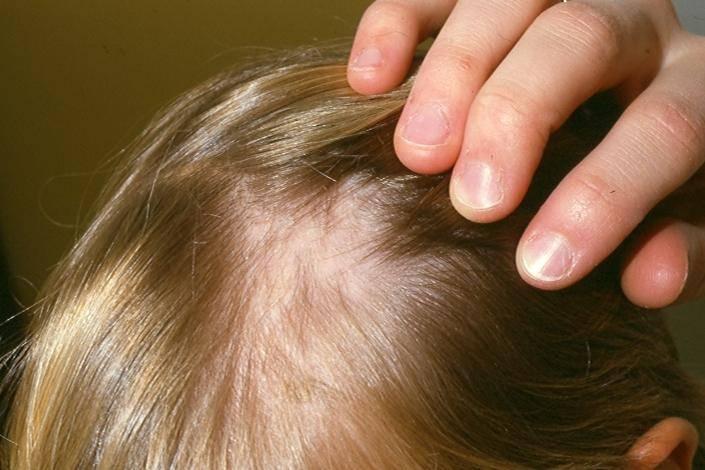 У ребенка плохо растут волосы: причины и что делать