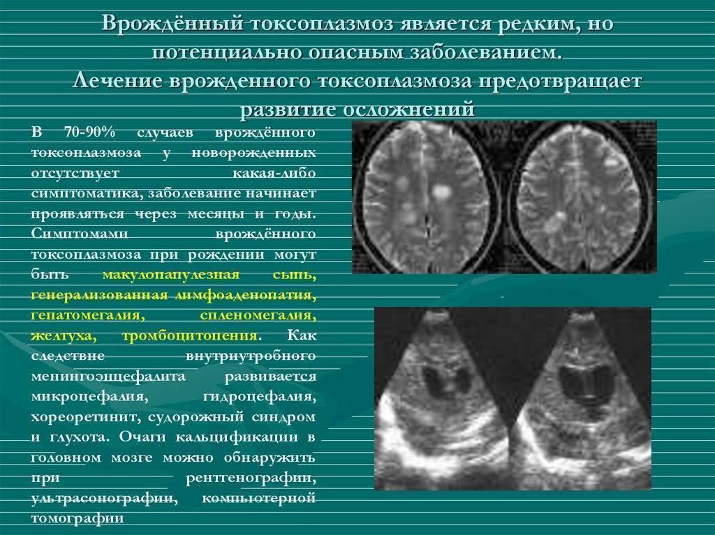 Токсоплазмоз при беременности: причины, симптомы, профилактика. должна знать каждая беременная женщина